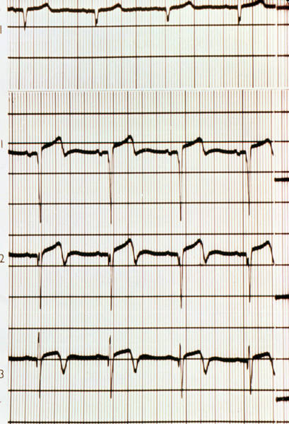 Heart Attack Wall Art - Photograph - Heart Attack: Ecg Showing Myocardial Infarction by Science Photo Library