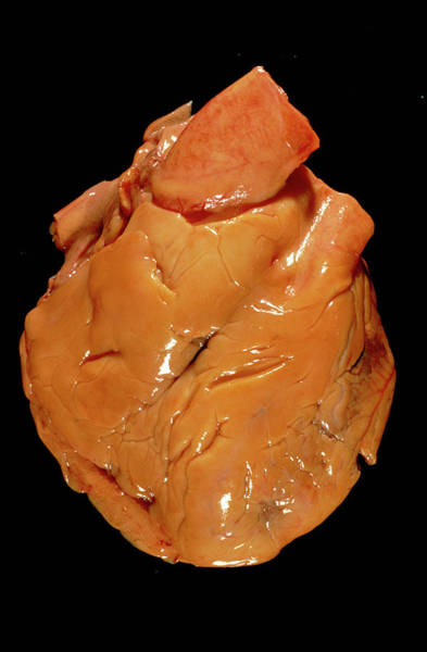 Fatty Tissue Photograph - Heart Fat Deposits by Cnri/science Photo Library