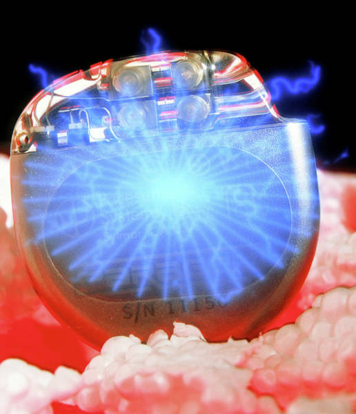 Special Effects Photograph - Heart Pacemaker by Bruce Mireyless/science Photo Library