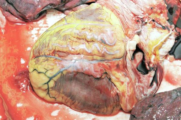 Fatty Tissue Photograph - Heart by Science Photo Library