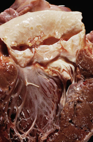 Atherosclerosis Wall Art - Photograph - Heart Valve Disease by Cnri/science Photo Library