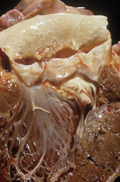 Fatty Tissue Photograph - Heart Valve Disease by Pr. M. Forest - Cnri/science Photo Library