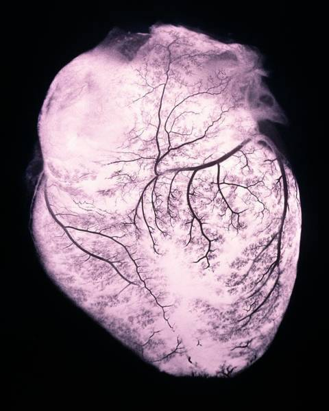 Circulation Wall Art - Photograph - Heart With Arteries by Science Photo Library