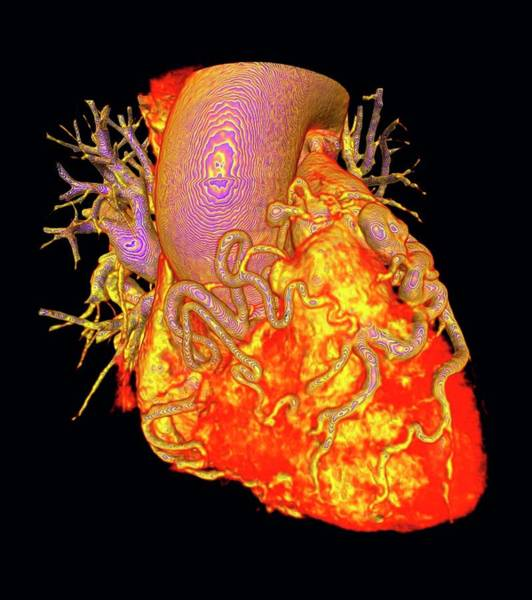 Cardiovascular Disease Wall Art - Photograph - Heart With Dilated Coronary Arteries by K H Fung/science Photo Library