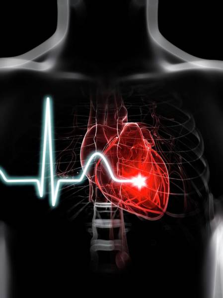 Wall Art - Photograph - Heartbeat by Sciepro/science Photo Library