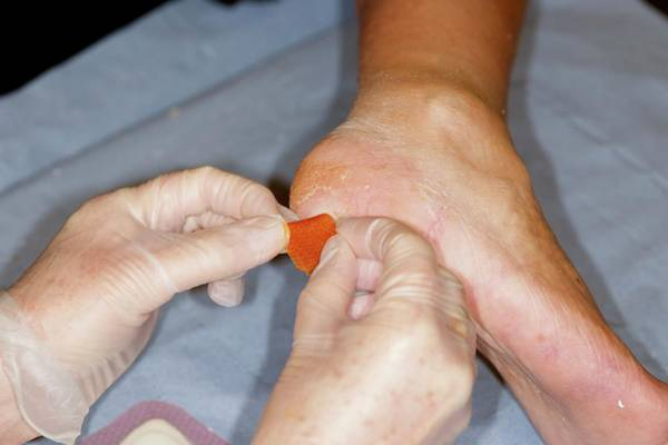 Dressing Photograph - Heel Ulcer by Dr P. Marazzi/science Photo Library