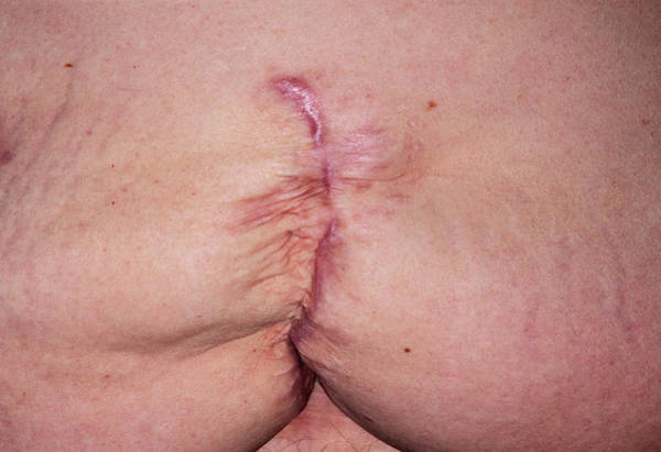 Surgery Photograph - Hernia Scar by Dr P. Marazzi/science Photo Library