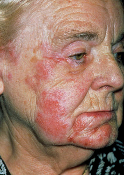 Shingles Photograph - Herpes Zoster Rash On An Elderly Woman's Face by Dr P. Marazzi/science Photo Library