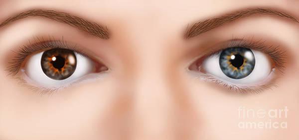 Eye Ball Photograph - Heterochromia Iridum by Gwen Shockey