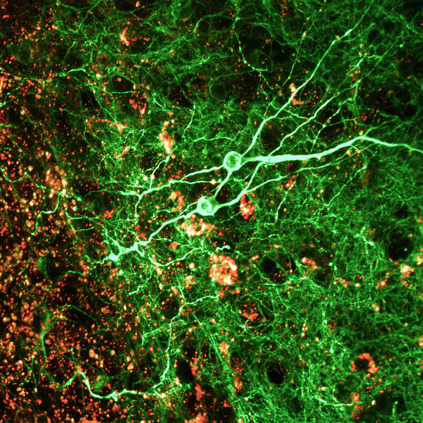 Nerve Cell Photograph - Hippocampus Tissue by C.j.guerin, Phd, Mrc Toxicology Unit/ Science Photo Library