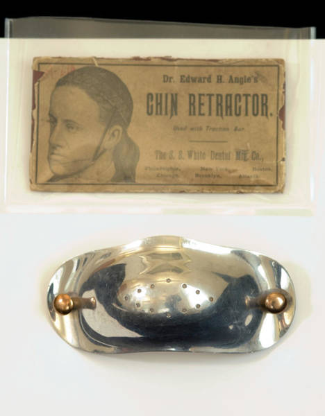 Wall Art - Photograph - Historical Orthodontic Chin Retractor by Mark Thomas/science Photo Library