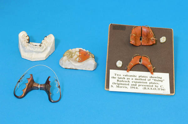 Dentistry Wall Art - Photograph - Historical Orthodontic Plates by Mark Thomas/science Photo Library