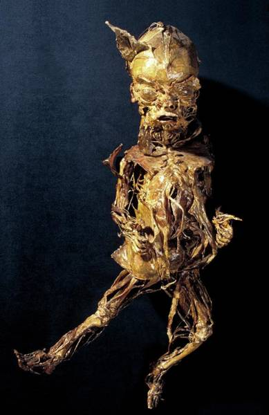 Wall Art - Photograph - Human Baby Anatomy by Patrick Landmann/science Photo Library