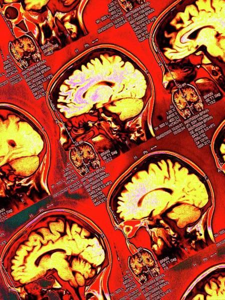 Mri Scan Wall Art - Photograph - Human Brain by Larry Berman