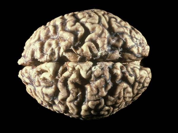 Cerebrum Photograph - Human Brain by Pr. M. Forest - Cnri