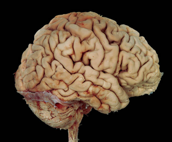 Cerebrum Photograph - Human Brain by Tissuepix/science Photo Library