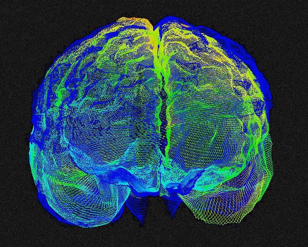 Wall Art - Photograph - Human Brain Variation by Arthur Togaucla