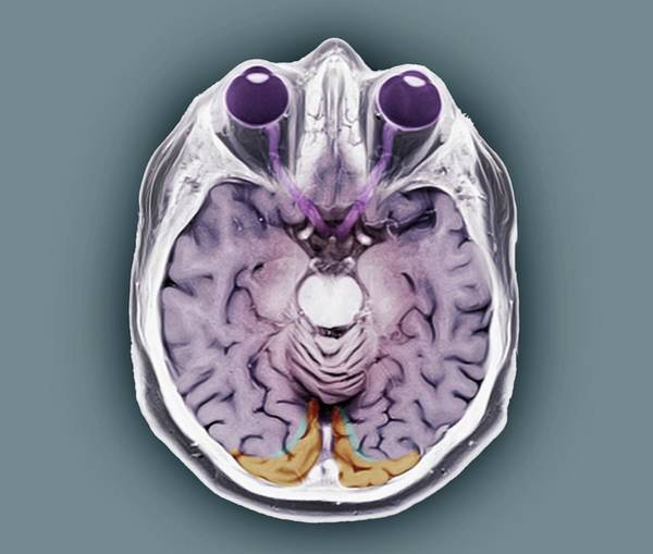 Optics Photograph - Human Eyes And Brain by Zephyr/science Photo Library