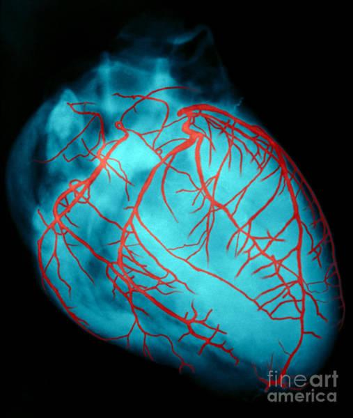 Photograph - Human Heart by David Bassett