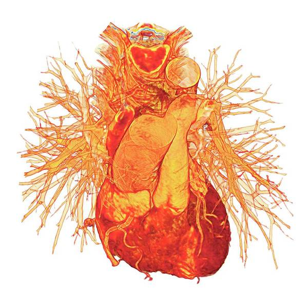 Internal Organs Photograph - Human Heart by K H Fung/science Photo Library