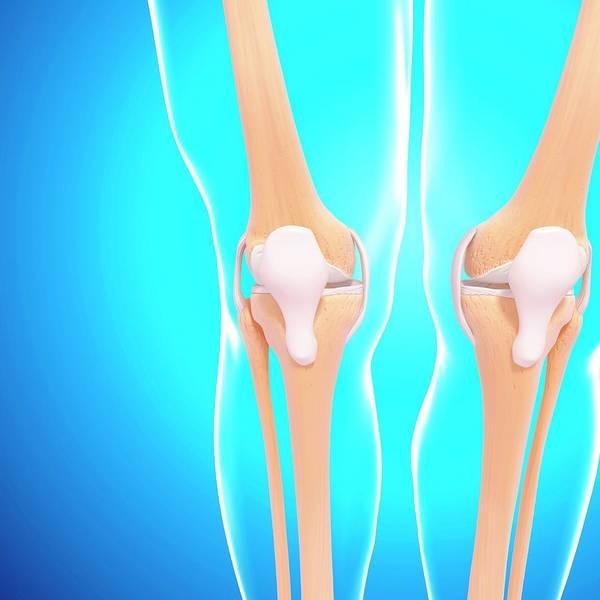Human Knee Joints Art Print by Pixologicstudio