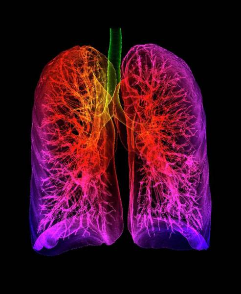 Wall Art - Photograph - Human Lungs by K H Fung/science Photo Library