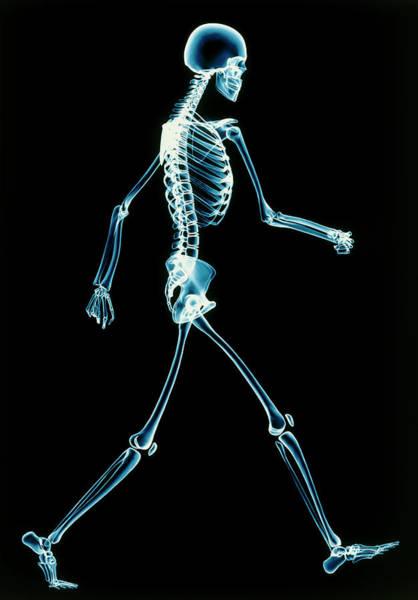 Radiograph Photograph - Human Skeleton Walking by Pasieka