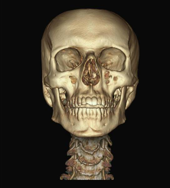 Vertebral Artery Photograph - Human Skull And Spine by Zephyr/science Photo Library