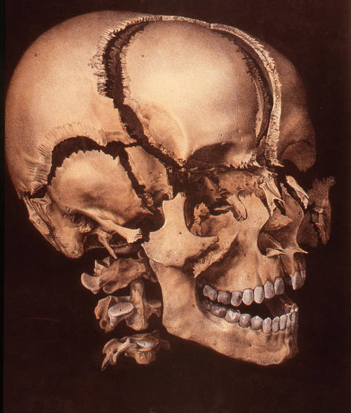 Cutout Wall Art - Photograph - Human Skull by Collection Abecasis/science Photo Library