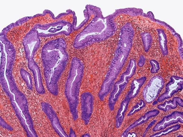 Stomach Wall Art - Photograph - Hyperplastic Polyp by Steve Gschmeissner