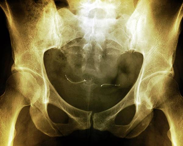 Wall Art - Photograph - Hysteroscopic Sterilisation by Zephyr/science Photo Library