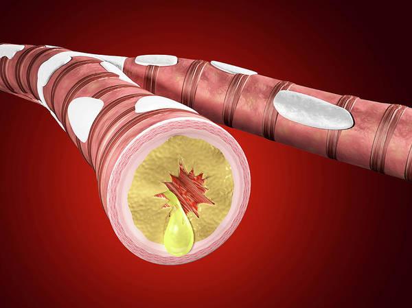 3d Model Photograph - Illustration Of Bronchitis by Harvinder Singh