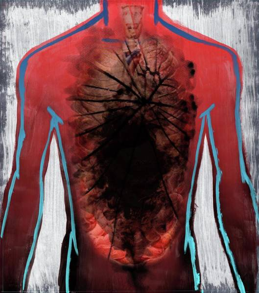 Wall Art - Photograph - Illustration Of Cancer Affected Human Organ by Fanatic Studio / Science Photo Library
