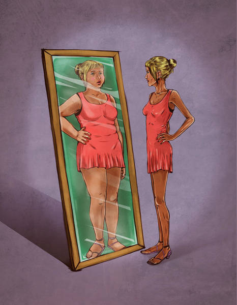Anorexia Photograph - Illustration Of Eating Disorder by Fanatic Studio / Science Photo Library