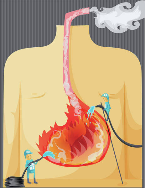 Wall Art - Photograph - Illustration Of Indigestion by Fanatic Studio / Science Photo Library