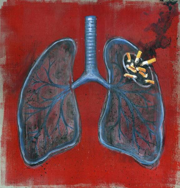 Wall Art - Photograph - Illustration Of Lungs And Cigarettes by Fanatic Studio / Science Photo Library