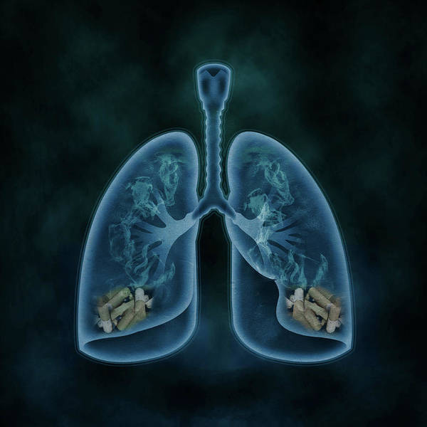 Wall Art - Photograph - Illustration Of Lungs Filled With Cigarettes by Fanatic Studio / Science Photo Library