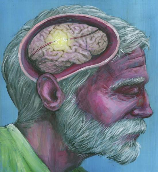 Wall Art - Photograph - Illustration Of Senior Man With Alzheimer's Disease by Fanatic Studio / Science Photo Library