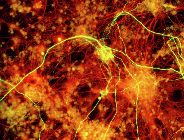 Wall Art - Photograph - Immunofluorescent Lm Of Neuron Fibres & Astrocytes by Nancy Kedershaucla