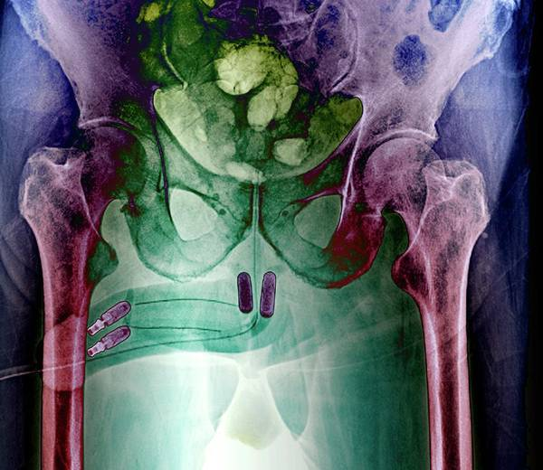 Radiological Photograph - Incontinence Implant by Zephyr