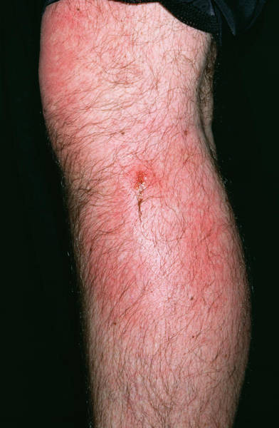 Bee Sting Photograph - Infected Bee Sting by Dr P. Marazzi/science Photo Library