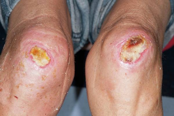 Wall Art - Photograph - Infected Knee Grazes by Dr P. Marazzi/science Photo Library