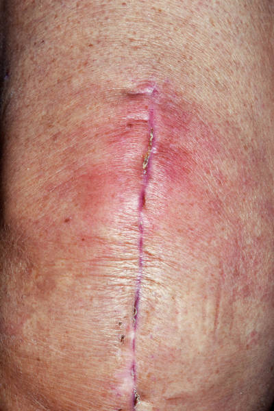 65 Photograph - Infected Knee Replacement Surgery Wound by Dr P. Marazzi/science Photo Library