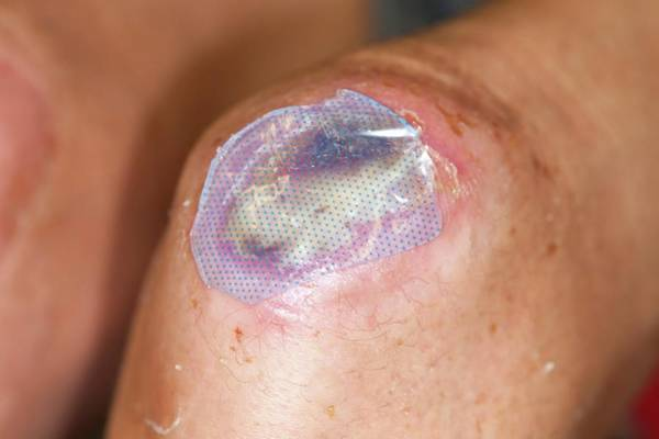 Dressing Photograph - Infected Knee Ulcer by Dr P. Marazzi/science Photo Library