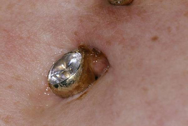 Body Piercing Photograph - Infected Navel Piercing by Dr P. Marazzi/science Photo Library