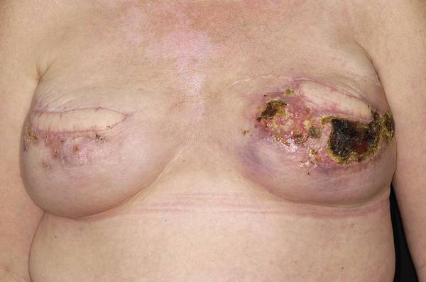 Carcinoma Wall Art - Photograph - Infected Wound After Breast Surgery by Dr P. Marazzi/science Photo Library
