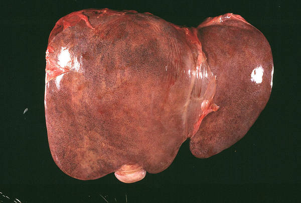 Inflammation Wall Art - Photograph - Inflamed Liver by Cnri/science Photo Library