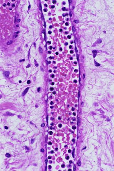 Histology Photograph - Inflammatory Response by Microscape/science Photo Library