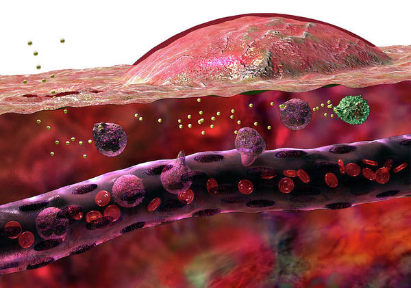 Capillary Wall Art - Photograph - Inflammatory Response by Russell Kightley/science Photo Library