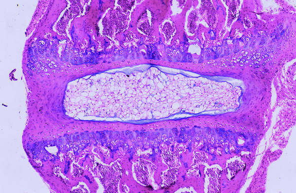 Vertebra Photograph - Intervertebral Disc by Innerspace Imaging/science Photo Library